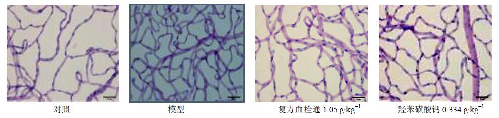 。本研究应用链脲佐菌素诱导建立糖尿病大鼠视网膜病变模型,通过观察羟苯磺酸钙对糖尿病视网膜病变胶原代谢及血管新生的影响,探讨其改善糖尿病视网膜病变的机制。 1 材料 1.1 动物 SPF级雄性SD大鼠41只,体质量160~190 g,购于北京维通利华实验动物技术有限公司,许可证号SCXK(京)2012-0001。动物饲养于北京中医药大学实验动物中心SPF实验室,室温20~25 ,相对湿度40%~70%,换气次数10~15次/h,12 h光照,昼夜循环。动物颗粒饲料喂养,自由摄食饮水。 1.