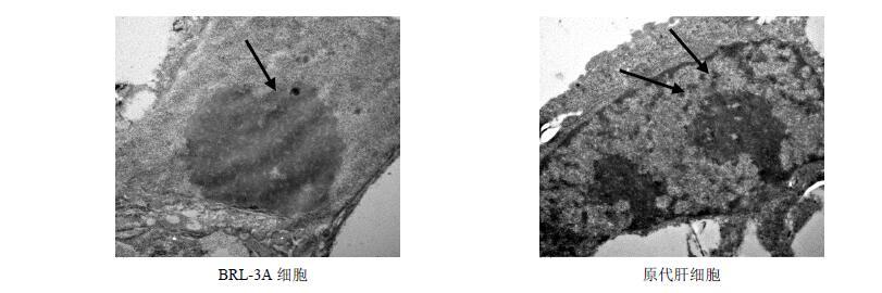 对brl-3a细胞,大鼠原代肝细胞超微结构的影响