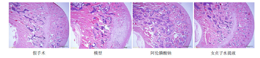 女贞子水提液对去卵巢大鼠骨结构和骨代谢的影响研究